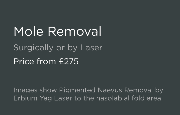 Mole Removal Leeds and Harrogate - Introduction