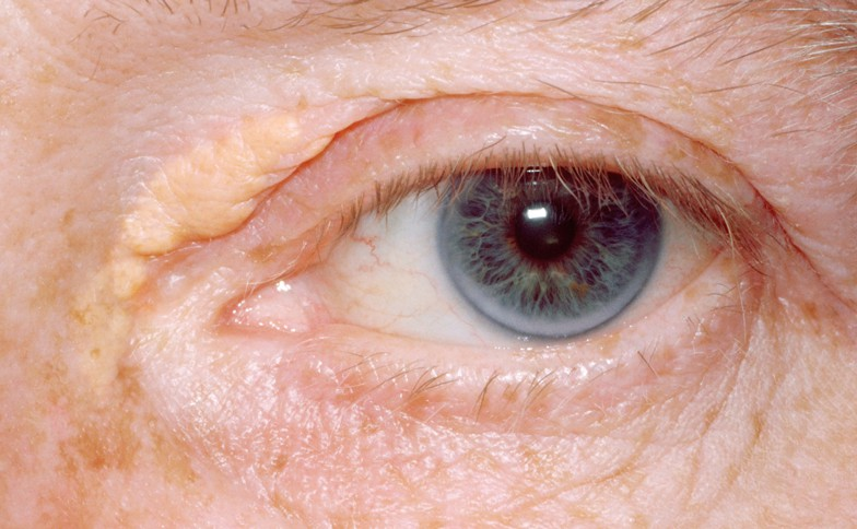 Xanthelasma Removal from £395 in Leeds, Bradford and Harrogate
