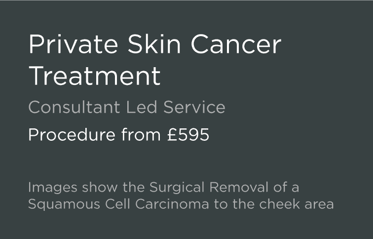 Private Skin Cancer Treatment BCC SSC Leeds Bradford Harrogate Yorkshire