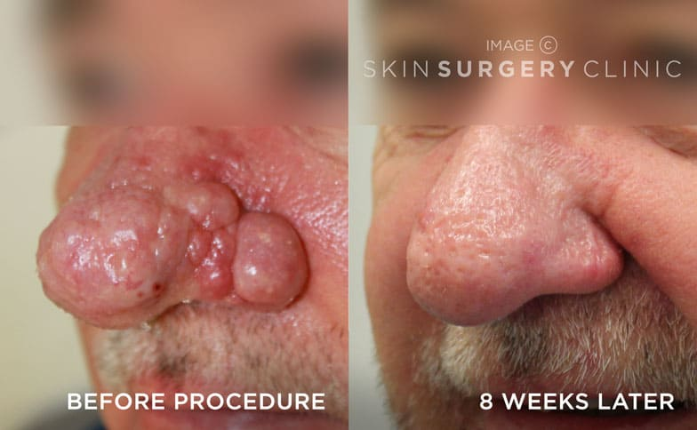 Rhinophyma Treatment Leeds and Harrogate - Before and After