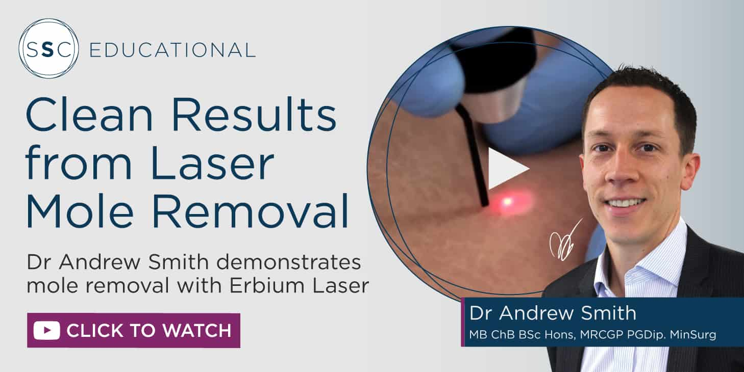Laser Mole Removal Video and Q&A with Dr Andrew Smith