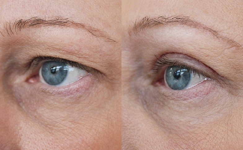 Upper Blepharoplasty (Eyelid Lift) Leeds and Harrogate - Before and After