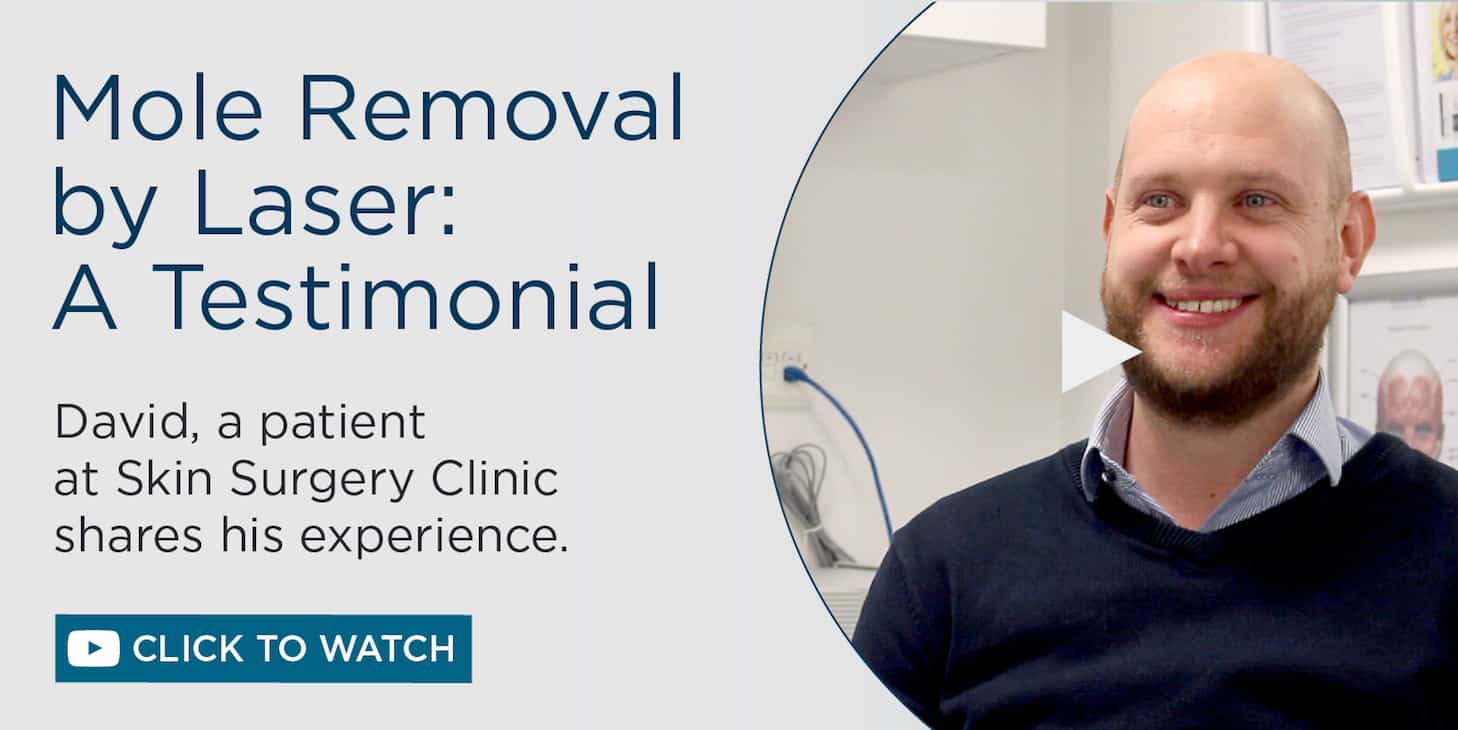Laser Mole Removal Video Testimonial