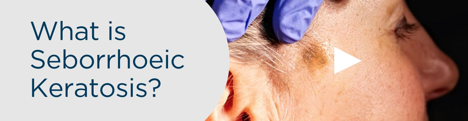 What is Seborrhoeic Keratosis? Laser Removal at Skin Surgery Clinic Leeds-Bradford and Harrogate
