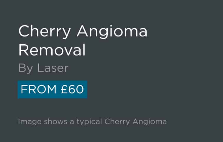 Cherry Angioma Removal