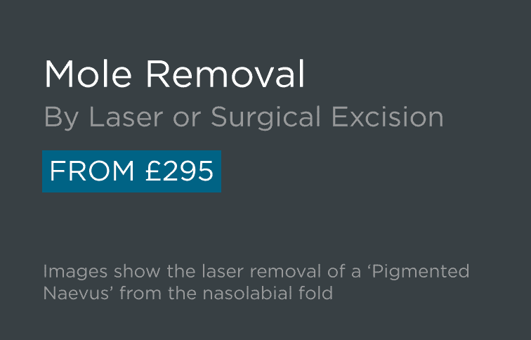 Mole Removal Leeds and Bradford - Introduction