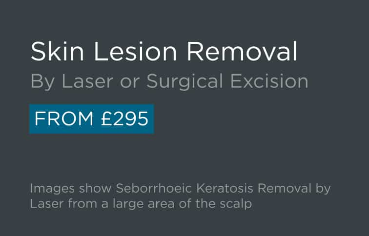 Skin Lesion Removal Leeds and Harrogate - Introduction