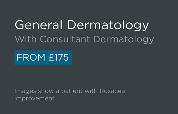 Specialist Dermatology Consultation - Skin Surgery Clinic