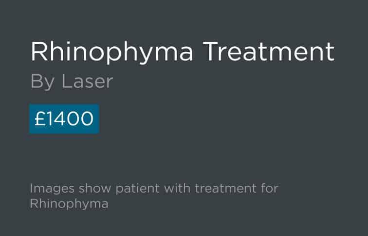 Rhinophyma Treatment Leeds and Harrogate - Introduction