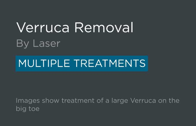 Verruca Removal Leeds and Harrogate - Introduction