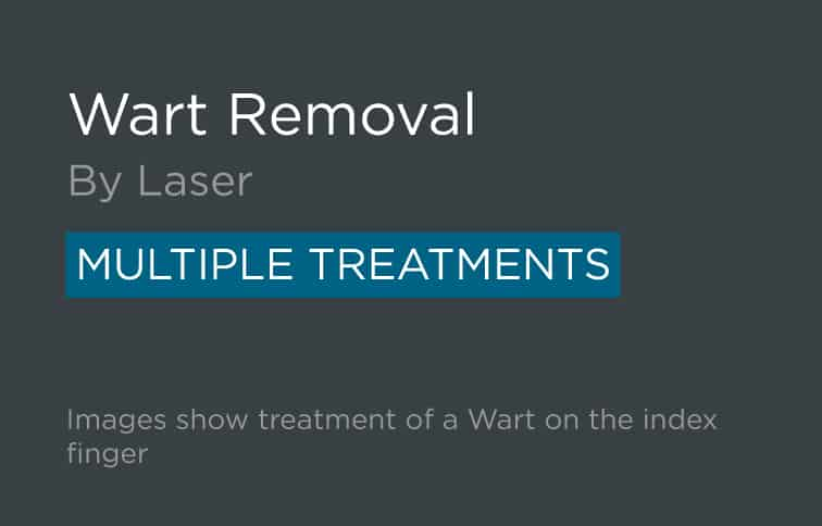 Wart Removal Leeds and Harrogate - Introduction
