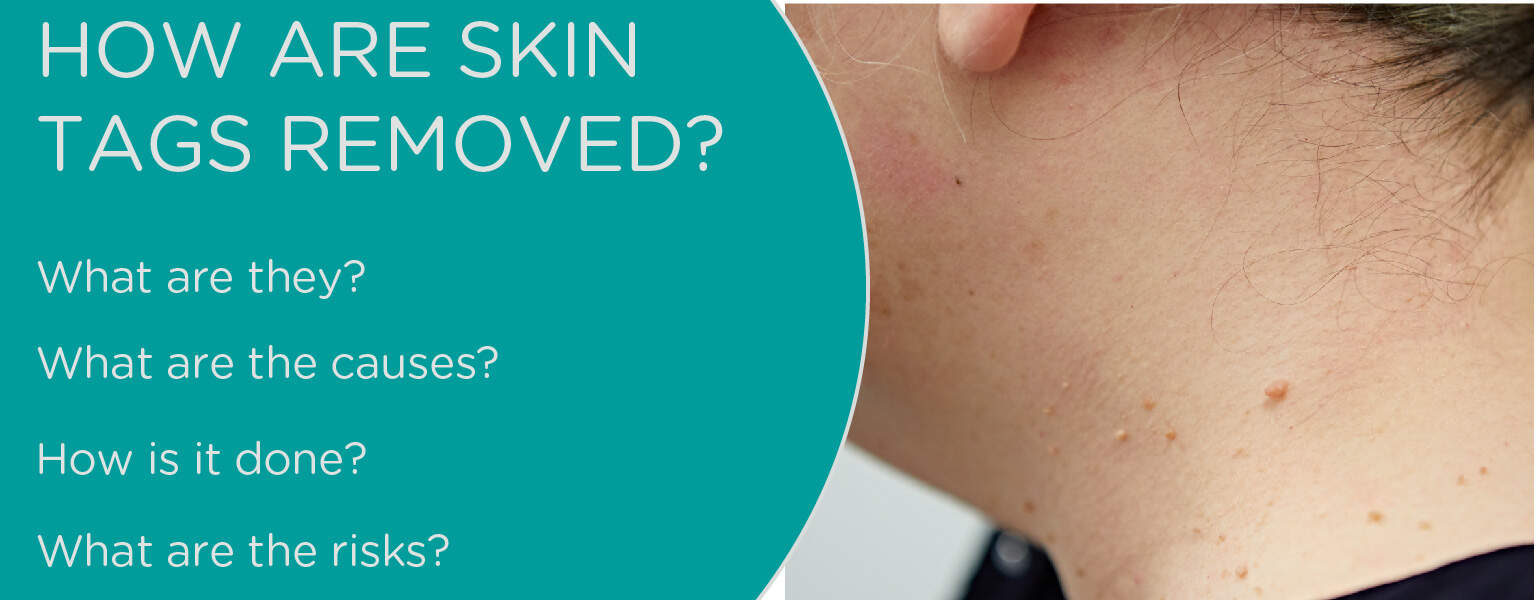 How are skin tags removed?