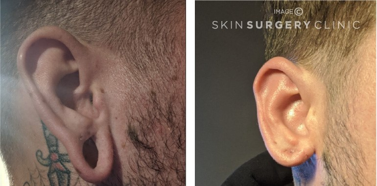 Stretched Earlobe Reconstruction