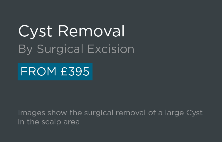 Cyst Removal Leeds and Bradford - Introduction